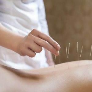 akupunktura1 - Акупунктура