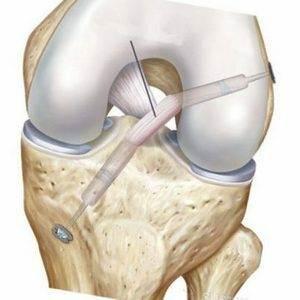 lechenie razryva svjazok kolennogo sustava - Разрыв связок коленного сустава