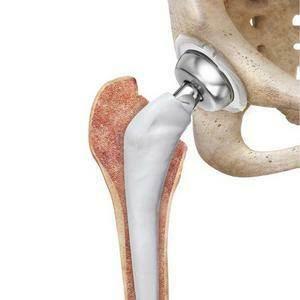 zamena tazobedrennogo sustava - Замена тазобедренного сустава