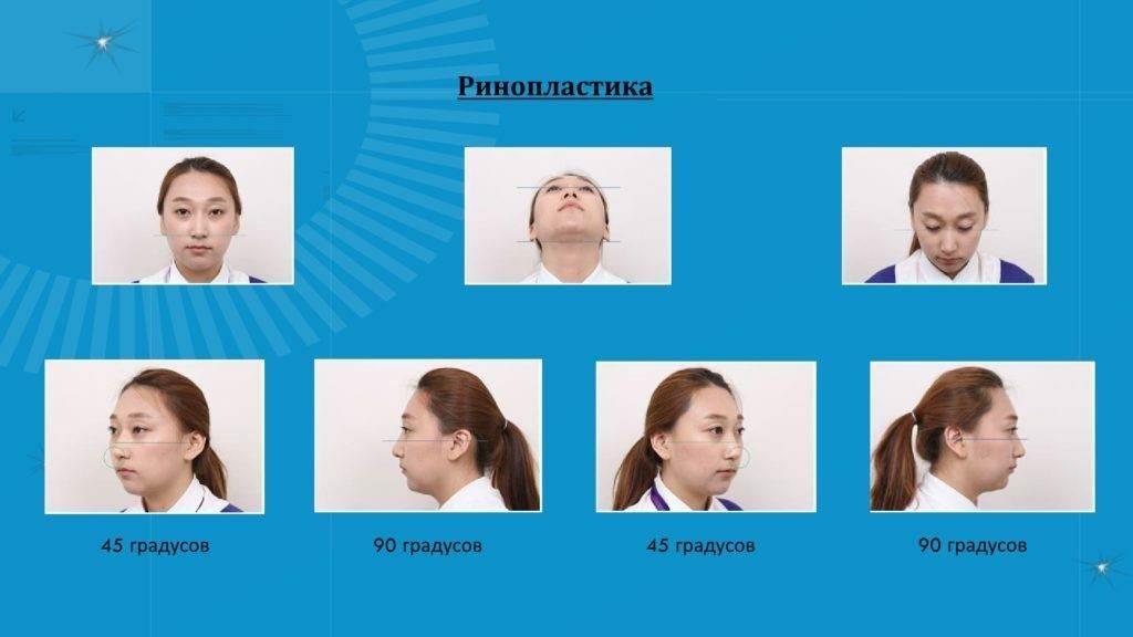 kak sdelat foto dlya zaprosa na plastiku 3 1024x576 - Как отправить запрос на пластику в Корею