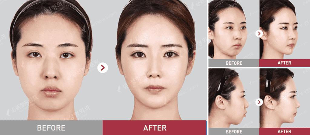4 1024x447 - Ринопластика в Корее
