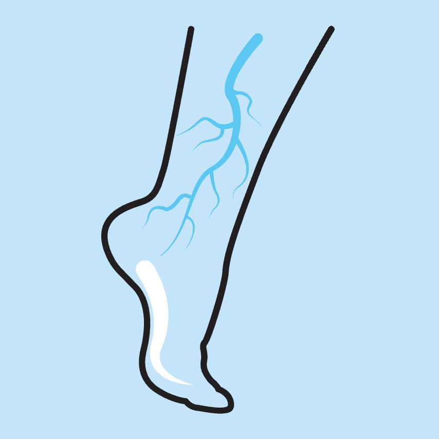 vascular surgery - Сосудистая хирургия