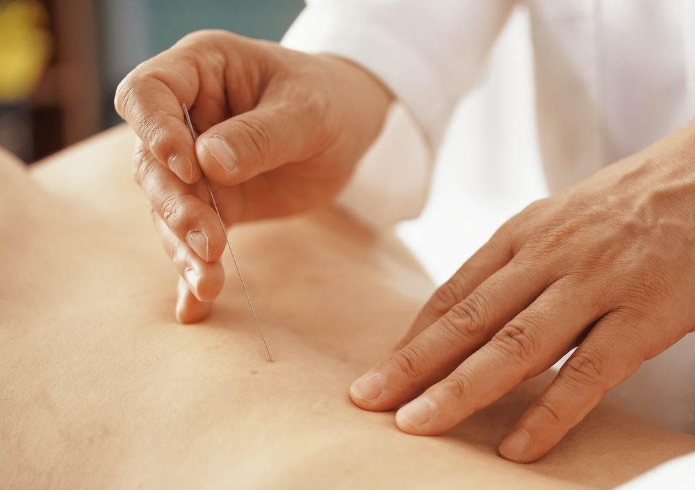 akupunktura 1 - Лечение цервикальной дистонии в Южной Корее