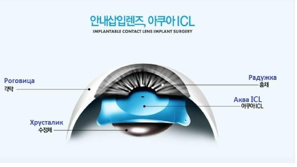 Аква ICL- имплантация контактных линз