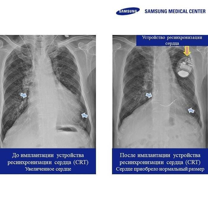 gnews0518 - Достигнуто 300 случаев проведения сердечной ресинхронизирующей терапии Центра аритмии МЦ Самсунг