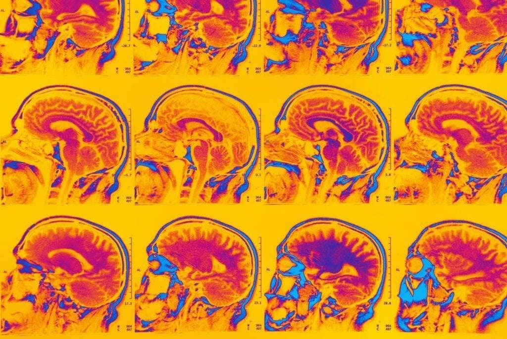 лечение воспаления мозга