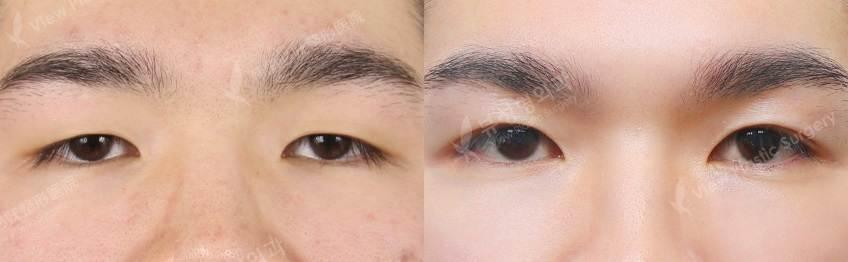 .jpg - Фотографии пациентов до и после блефаропластики в Корее