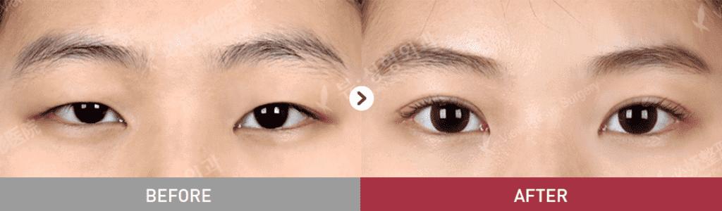 12 1024x300 - Фотографии пациентов до и после блефаропластики в Корее