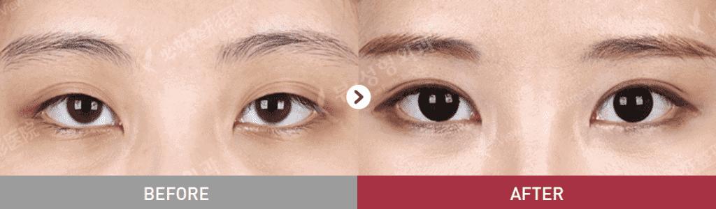 15 1024x300 - Фотографии пациентов до и после блефаропластики в Корее