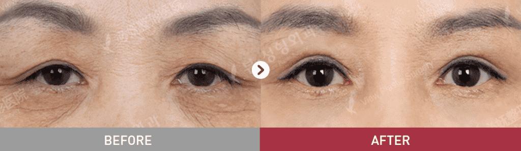 16 1024x297 - Фотографии пациентов до и после блефаропластики в Корее