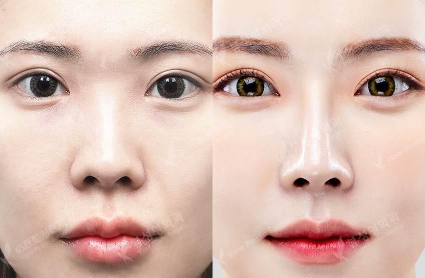 1a - Фотографии пациентов до и после блефаропластики в Корее