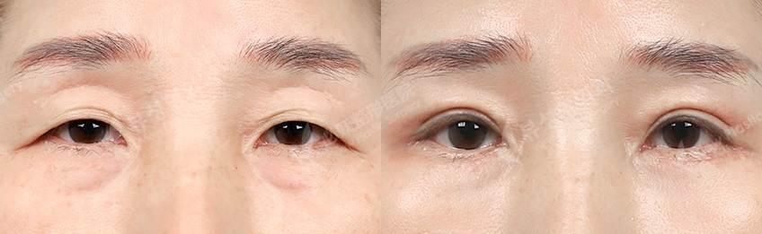 EyelidLBptosis2 - Фотографии пациентов до и после блефаропластики в Корее