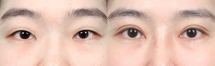 Iepi - Фотографии пациентов до и после блефаропластики в Корее