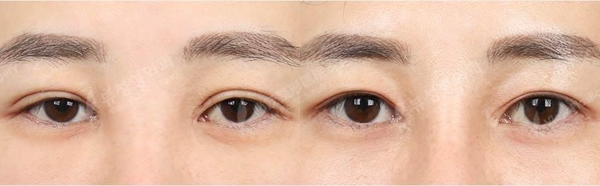 Iptosis - Фотографии пациентов до и после блефаропластики в Корее