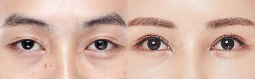 Iptosis1 - Фотографии пациентов до и после блефаропластики в Корее
