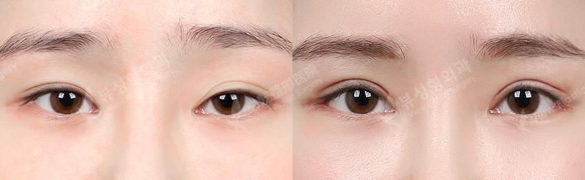 Iptosislow - Фотографии пациентов до и после блефаропластики в Корее