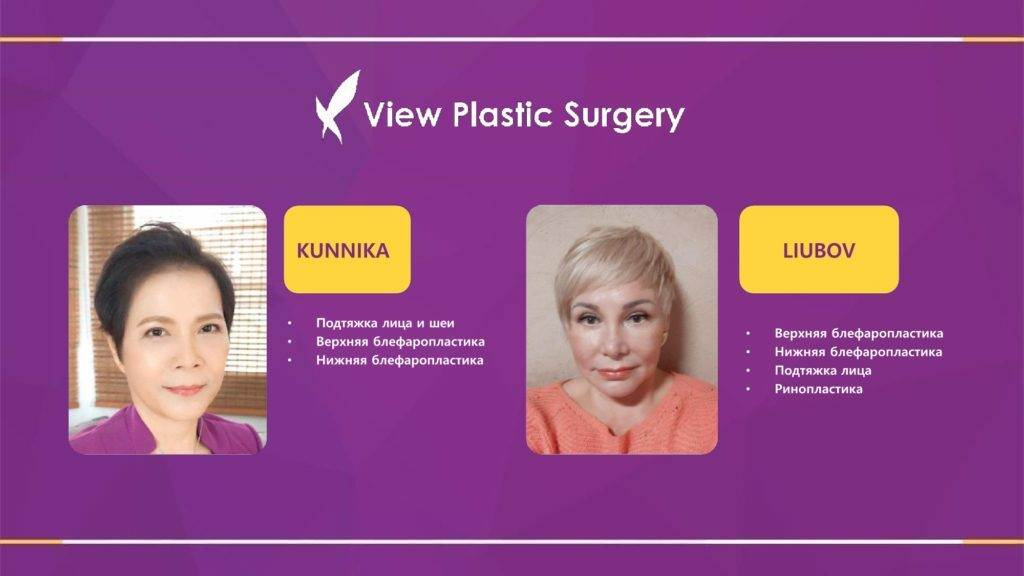 Lifting krugovaya podtyazhka 1 1024x576 - Кейсы пациентов после хирургической подтяжки лица, ринопластики и блефаропластики в Корее