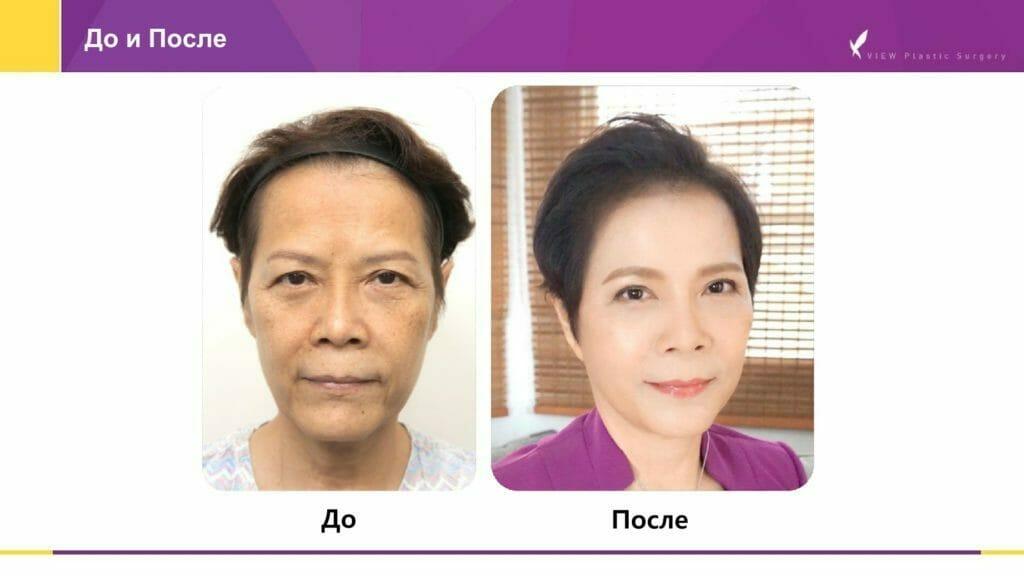 Lifting krugovaya podtyazhka 11 1024x576 - Кейсы пациентов после хирургической подтяжки лица, ринопластики и блефаропластики в Корее