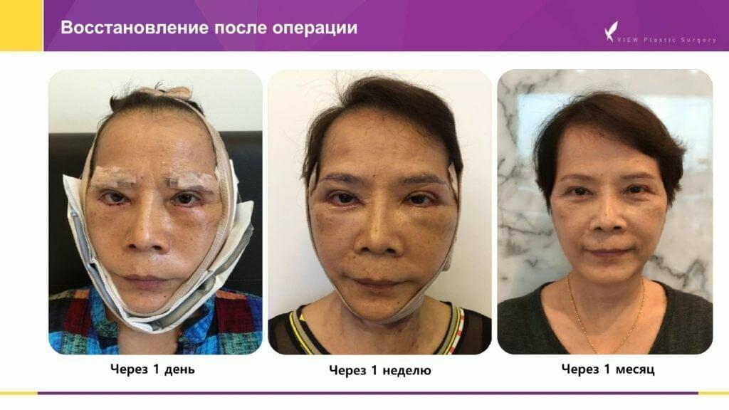 Lifting krugovaya podtyazhka 12 1024x576 - Кейсы пациентов после хирургической подтяжки лица, ринопластики и блефаропластики в Корее