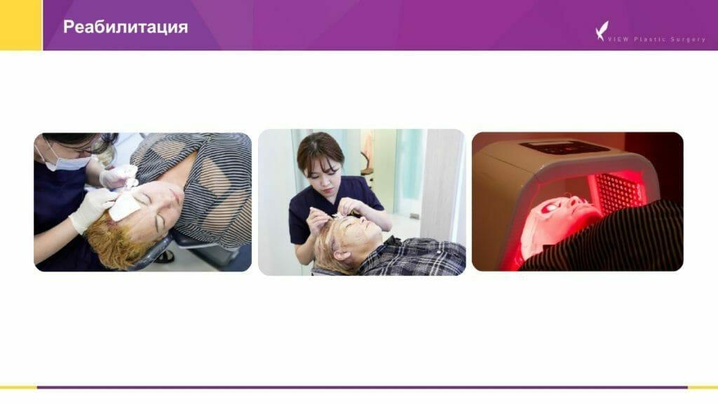 Lifting krugovaya podtyazhka 5 1024x576 - Кейсы пациентов после хирургической подтяжки лица, ринопластики и блефаропластики в Корее