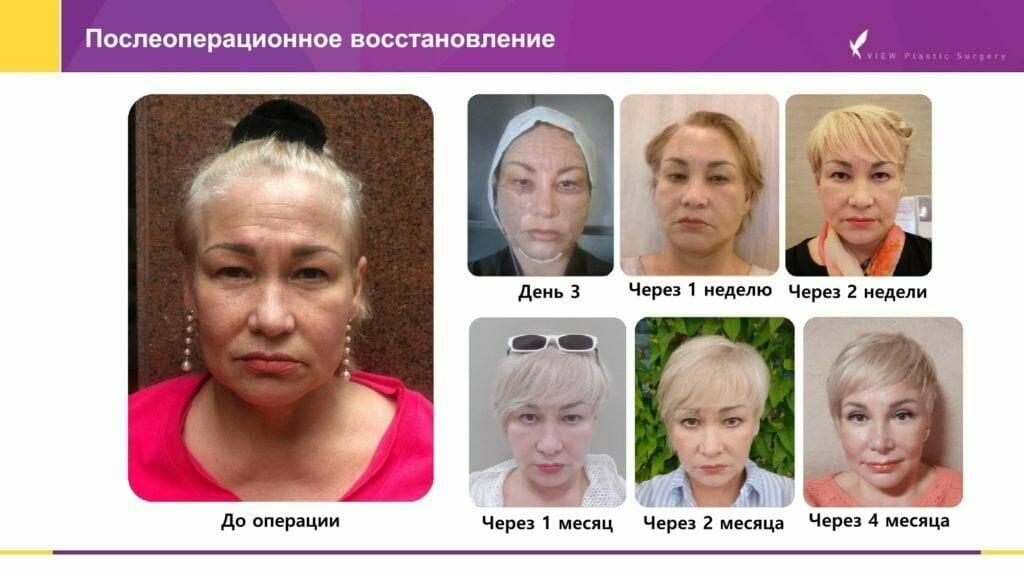 Lifting krugovaya podtyazhka 6 1024x576 - Кейсы пациентов после хирургической подтяжки лица, ринопластики и блефаропластики в Корее
