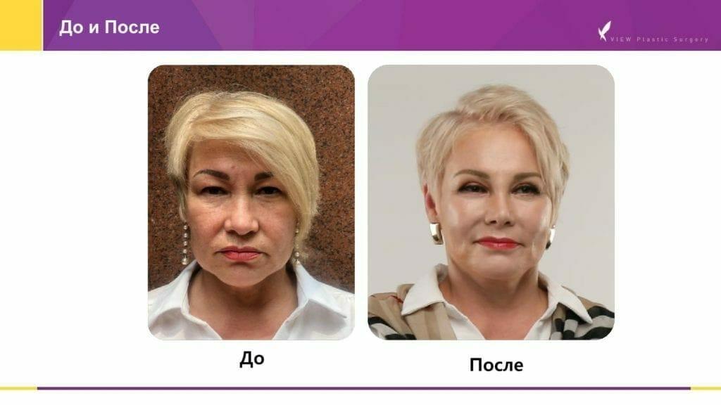Lifting krugovaya podtyazhka 7 1024x576 - Кейсы пациентов после хирургической подтяжки лица, ринопластики и блефаропластики в Корее
