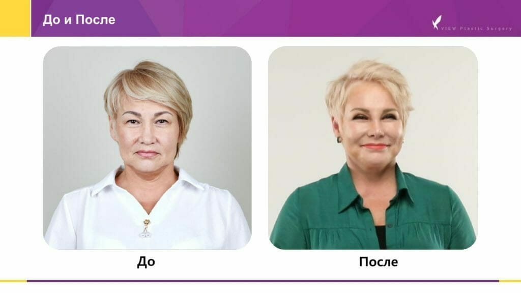 Lifting krugovaya podtyazhka 8 1024x576 - Кейсы пациентов после хирургической подтяжки лица, ринопластики и блефаропластики в Корее