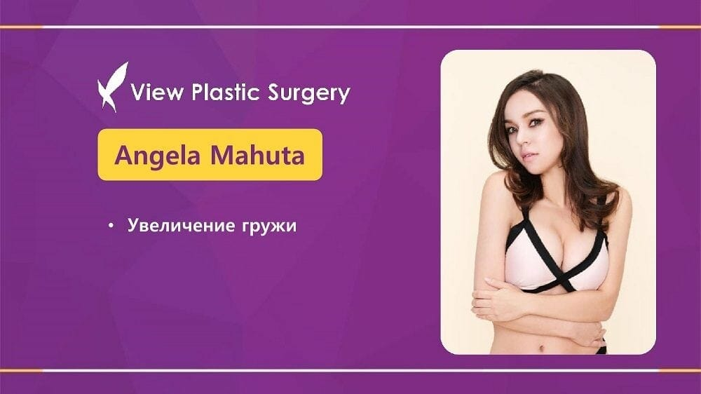 Mammoplastika 20191016 V2 1 - Кейс по маммопластике (увеличению груди) в Корее