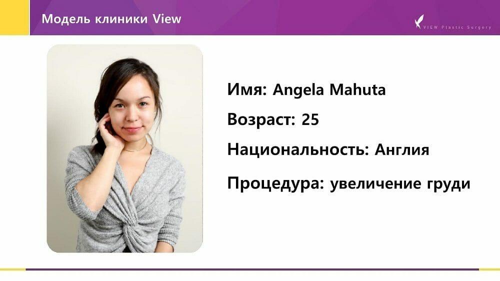 Mammoplastika 20191016 V2 2 - Кейс по маммопластике (увеличению груди) в Корее