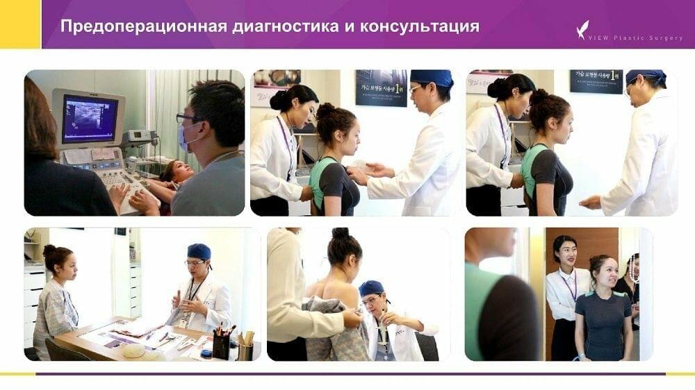 Mammoplastika 20191016 V2 3 - Кейс по маммопластике (увеличению груди) в Корее