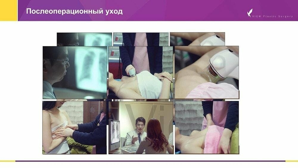 Mammoplastika 20191016 V2 4 - Кейс по маммопластике (увеличению груди) в Корее