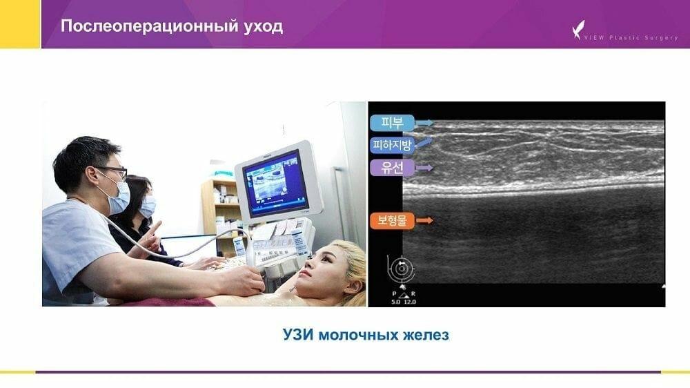 Mammoplastika 20191016 V2 5 - Кейс по маммопластике (увеличению груди) в Корее