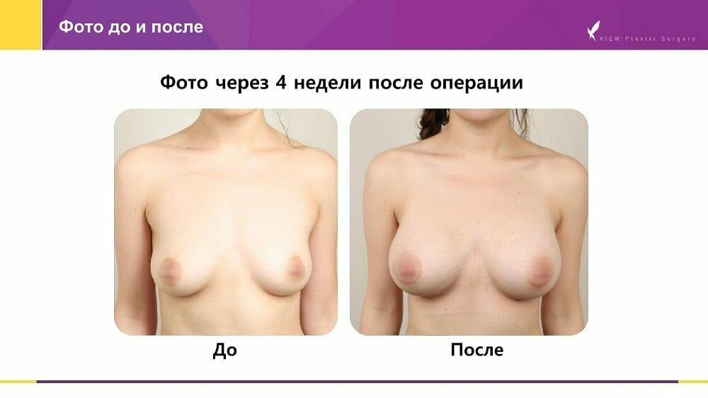 Mammoplastika 20191016 V2 6 - Кейс по маммопластике (увеличению груди) в Корее