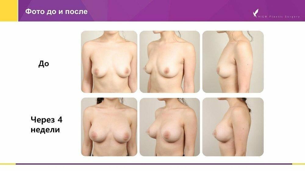 Mammoplastika 20191016 V2 7 - Кейс по маммопластике (увеличению груди) в Корее