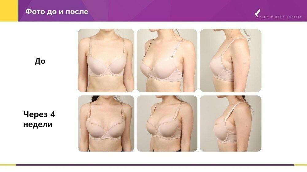 Mammoplastika 20191016 V2 8 - Кейс по маммопластике (увеличению груди) в Корее