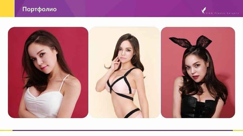 Mammoplastika 20191016 V2 9 - Кейс по маммопластике (увеличению груди) в Корее