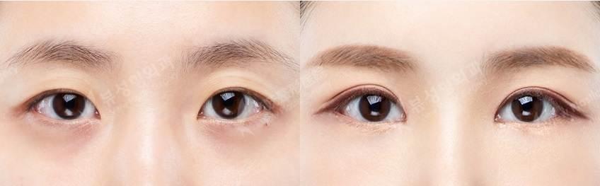 NIepi - Фотографии пациентов до и после блефаропластики в Корее