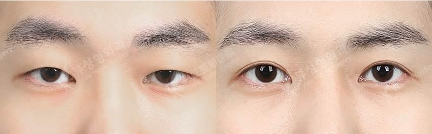 NIptosis1 - Фотографии пациентов до и после блефаропластики в Корее