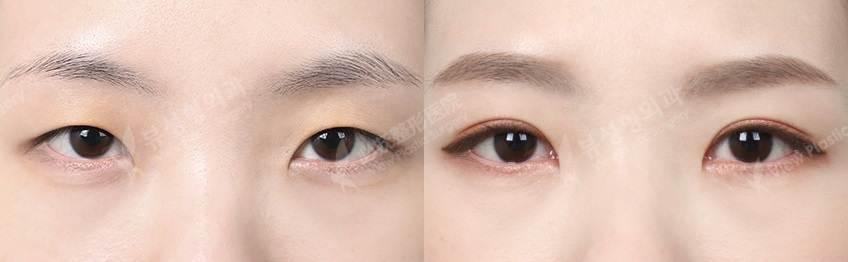 NIptosisepi - Фотографии пациентов до и после блефаропластики в Корее