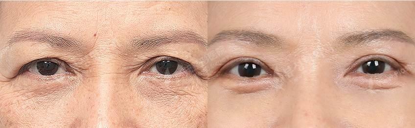 UBLBre2 - Фотографии пациентов до и после блефаропластики в Корее