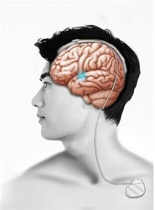 Искусственный интеллект прогнозирует результаты после глубокой стимуляции мозга